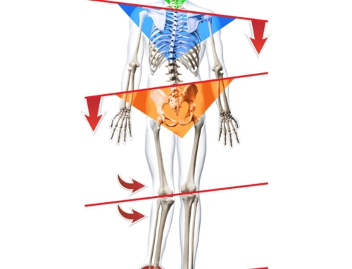 How Chiropractic Care Affects Leg Length Inequality and Improves Lower Back Pain