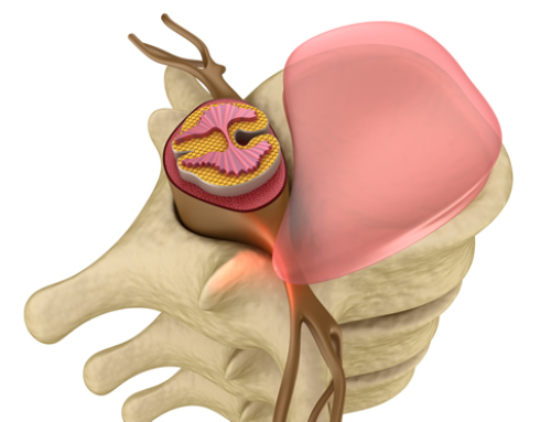 How Chiropractic Helps Heal a Bulging Disc